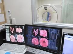 大腸CT画像